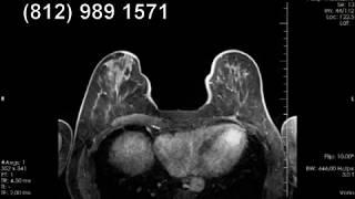 Рецидив рака молочной железы на МРТ груди
