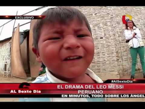 La Esperanza De Toda Una Familia: El Drama Del Pequeño Leo Messi Peruano