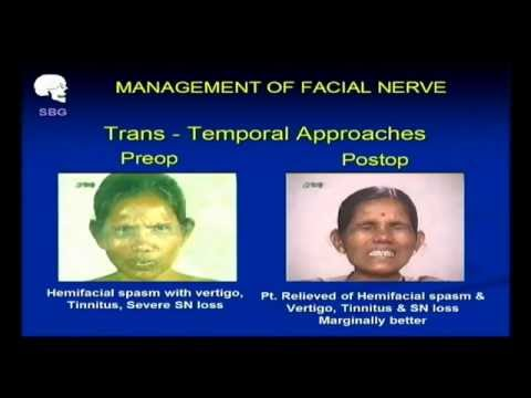 Management of Facial Nerve - Dr. Morwani
