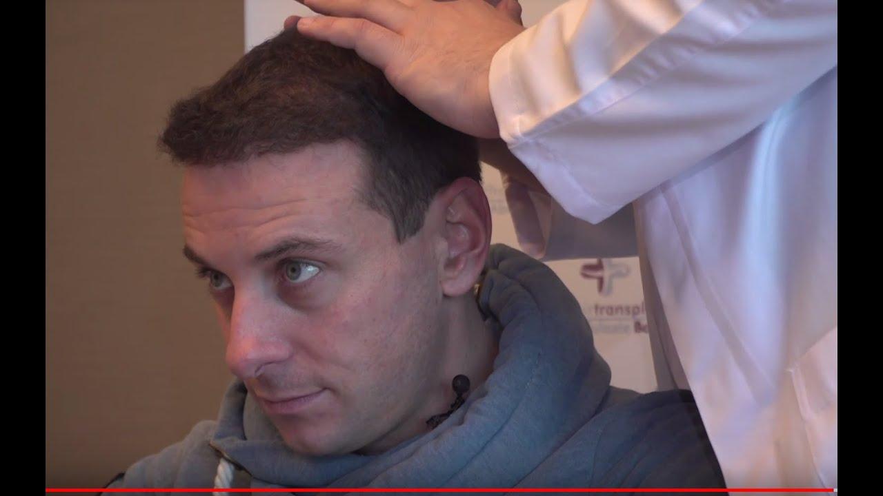 Haartransplantation Türkei - Erfahrungen und Kosten bei
