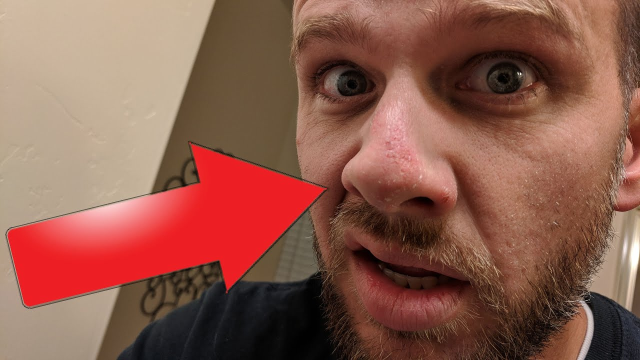 The Painful Story Of How I Nearly Broke My Nose Youtube