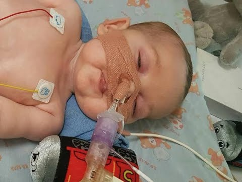 BREAKING: Charlie Gard Is NOT Dying...He Is Being Killed