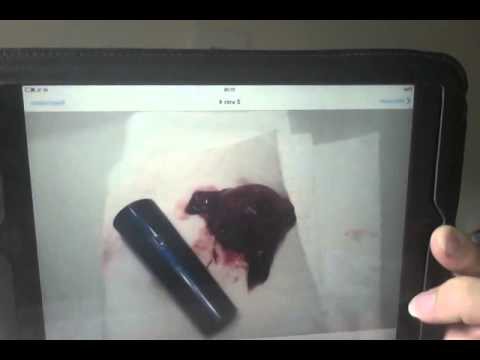 miscarriage-at-7-weeks/graphic-content-video-nr.2