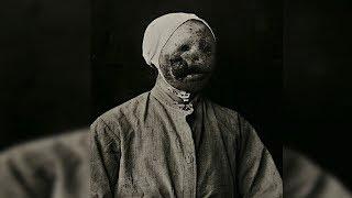 Bizarre Vintage Medical Photos From Utrecht Hospital 1890