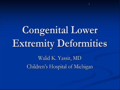 Congenital Lower Extremity Deformities - Dr. Yassir