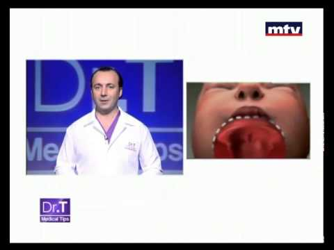 Cleft Lip Beirut Lebanon -  Dr T Medical Tips