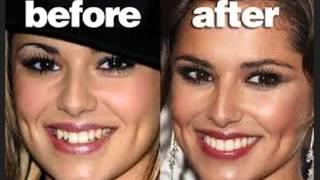 أسنان الفنانين و المشاهير قبل و بعد عمليات التجميل شوف الفرق