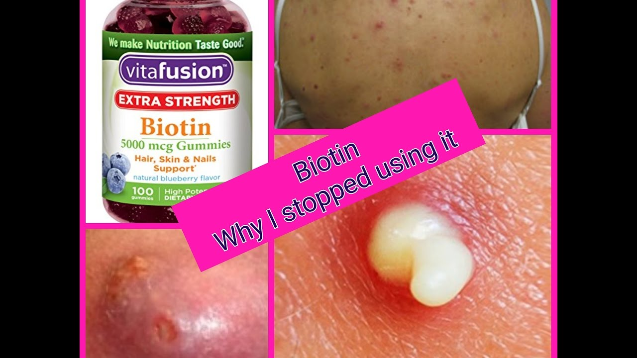 how to get rid of acne caused by biotin