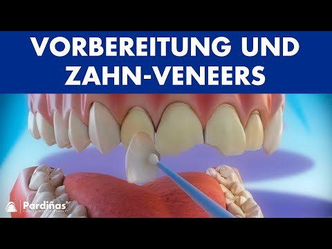 Weiße Und Gerade Zähne Mit Veneers