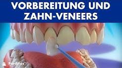 Veneers – Vorbereitung und Zahn-Veneers Stellung ©