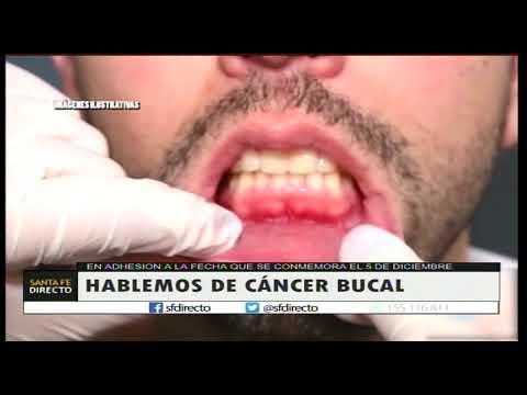 cancer bucal inicios)