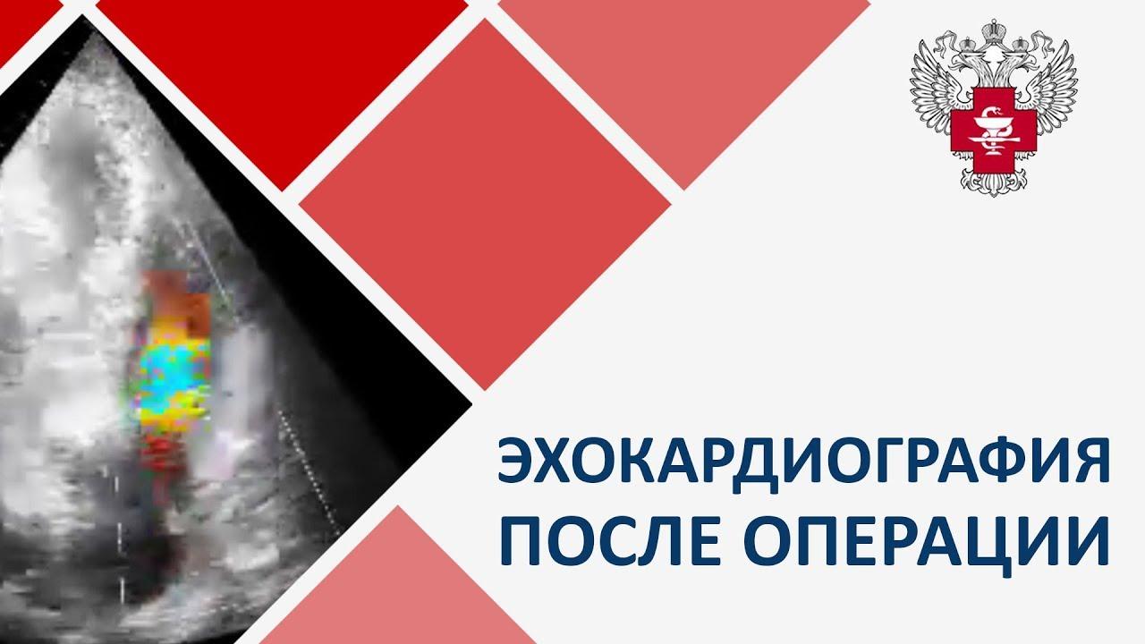 Эхокардиография после операции