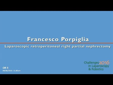 CILR 2016 - Francesco Porpiglia - Laparoscopic retroperitoneal right partial nephrectomy