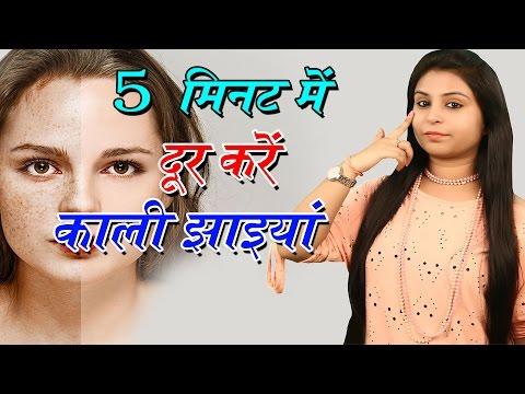 5 मिनट में दूर करें काली झाइयां Home Remedies For Freckles | Chehre Ki Jhaiyon Ka Ilaj - Beauty Tips