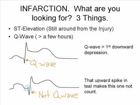 The ST Elevation Song What To Look For On An EKG YouTube - Whats my elevation