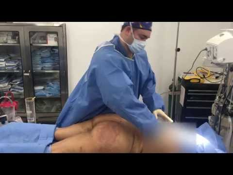 1800 cc per buttock and hip for Brazilian Buttlift and 5 liter liposuction with Dr. Hughes