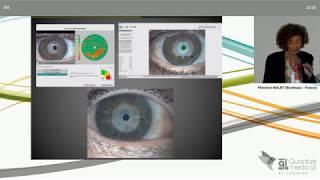 SFO 2019 - Qualité de la surface oculaire et confort des porteurs de lentilles