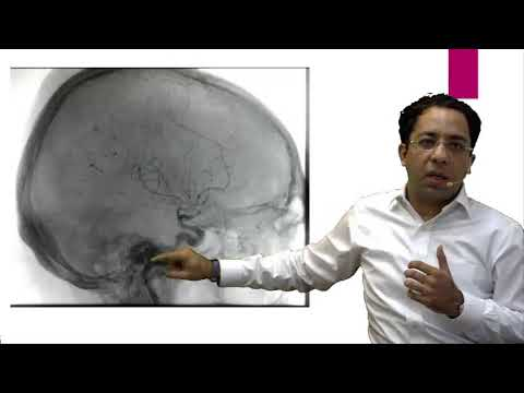 eQ Recent Exam Questions Radiology - Myelography by Dr  Sumer Sethi