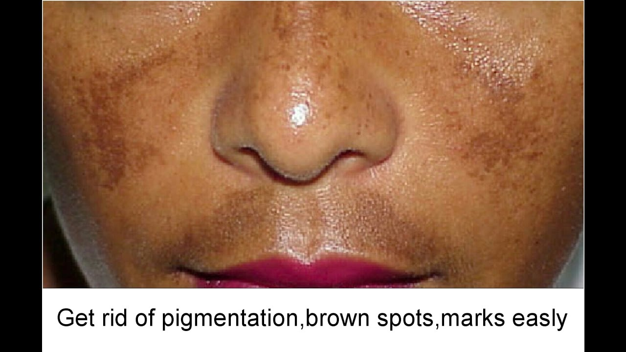 How To Get Rid Of Dark Spots On Nose Naturally