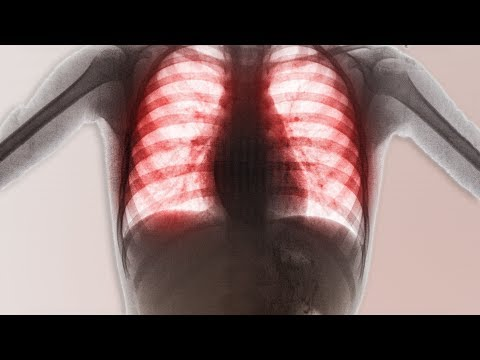 A Boy Ate 3 Laundry Pods. This Is What Happened To His Lungs.
