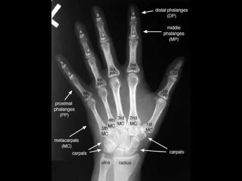 Bones X-Ray - YouTube