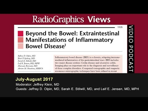 Beyond the Bowel: Extraintestinal Manifestations of Inflammatory Bowel Disease thumbnail