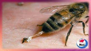 De una ¿Qué picadura abeja? la de para hacer inflamación puedes