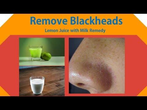 How to Remove Blackheads with Lemon | Lemon Juice with Milk Remedy