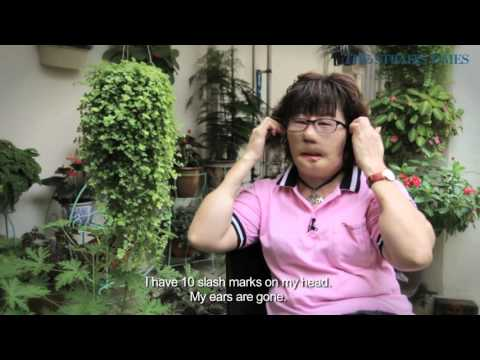 Turning Point: Disfigured but not disheartened
