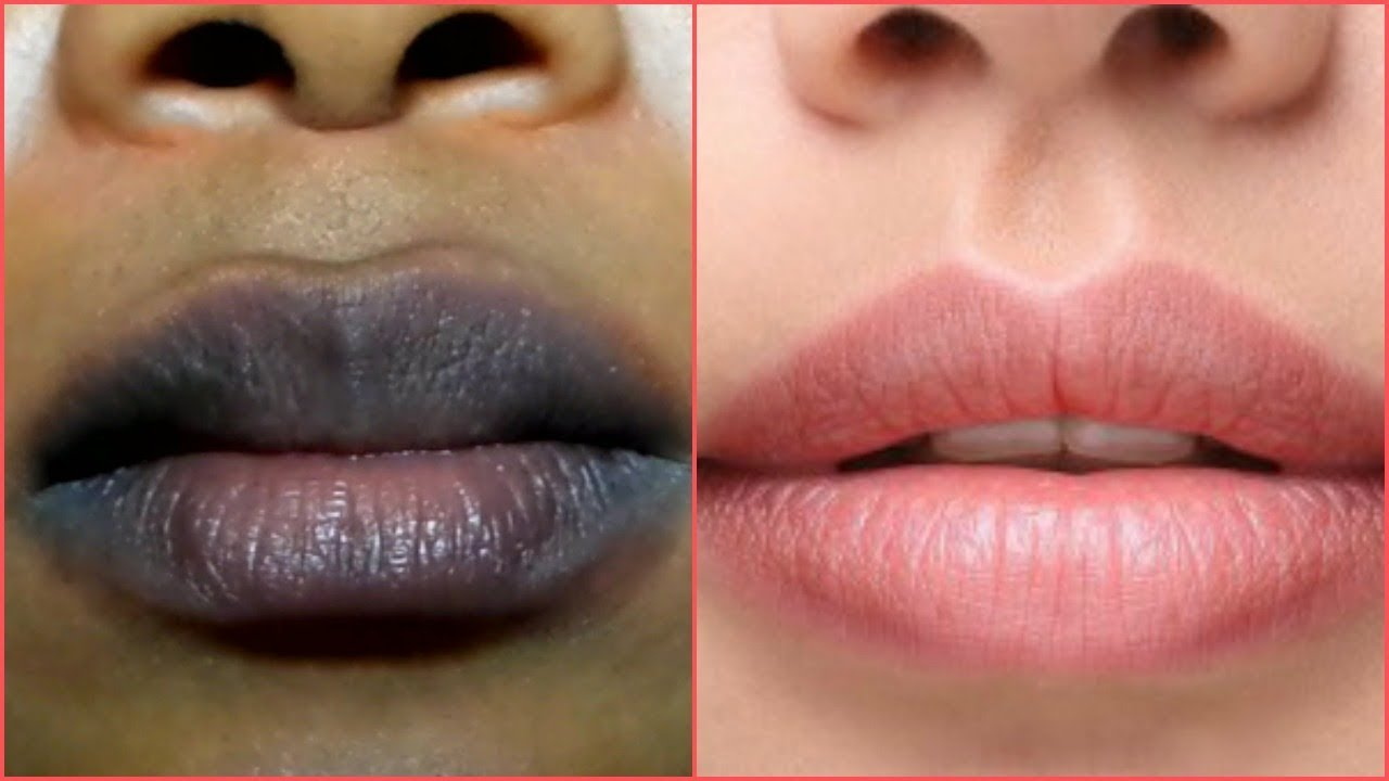 como quitar moretones en los labios por besar