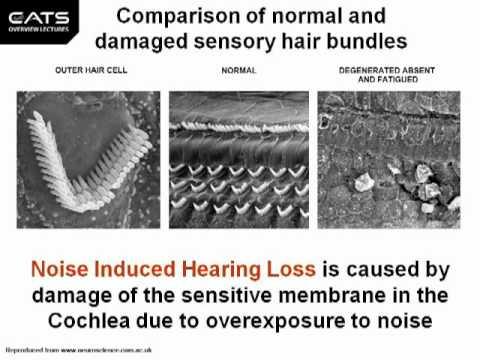 Stop Tinnitus: Drug Induced Tinnitus Treatment