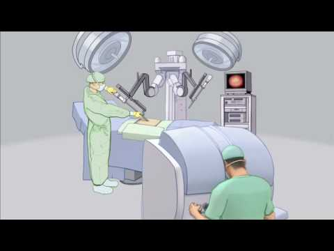 Robotic Urologic Surgery-Mayo Clinic