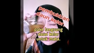 Tipskesehatanmata #Pterygium #Pengobatanpterygium Hai Sahabat KMU! / Kali ini dr. Irma Suryani, SpM .