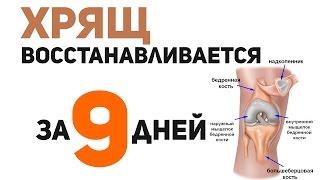 Как восстановить хрящевую ткань коленного сустава в домашних условиях