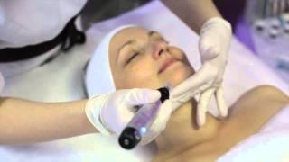 видео Арбутин - что это и для чего применяется, обзор косметики (отбеливающего крема, сыворотки и лосьона)