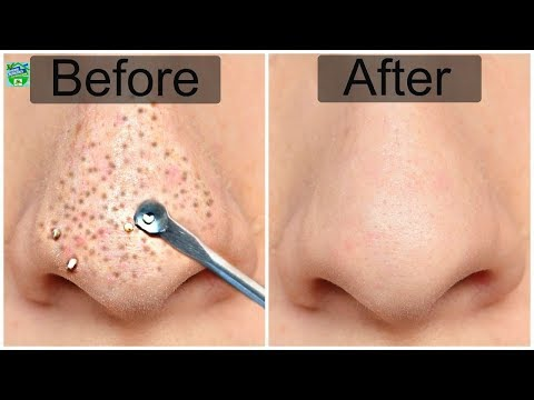 this-amazing-scrub-will-remove-blackheads-and-dead-skin-in-just-5-minutes-!