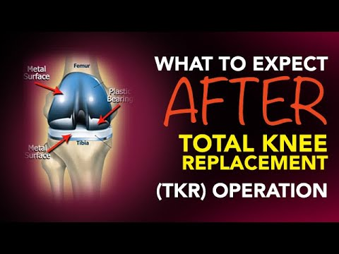 What To Expect After A Total Knee Replacement (TKR) Operation