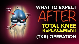What Expect After Total Knee Replacement Tkr Operation