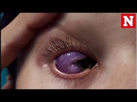 Bizarre eyeball tattoo leaves canadian model partially for Eyeball tattoo pics