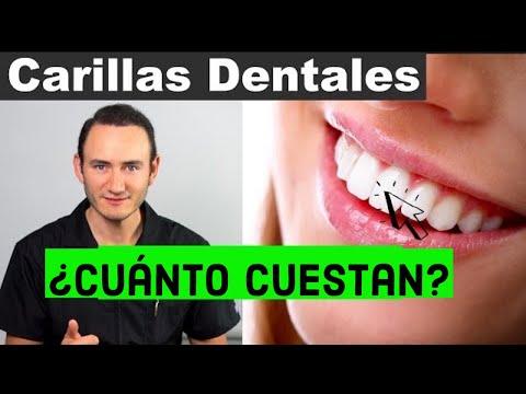 Carillas Dentales | ¿Qué son y Cuánto cuestan? | Precios 2018
