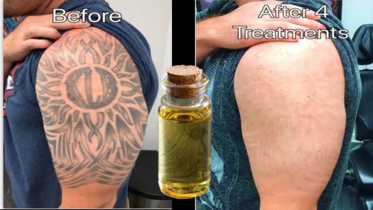 टैटू रिमूव करने का सबसे आसान तरीका | Tattoo Remove|Tattoo Hatane Ka Tarika | Godna Kaise Hataye - YouTube