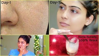 How to Get Rid of Large OPEN PORES Permanently at Home | Rinkal Soni