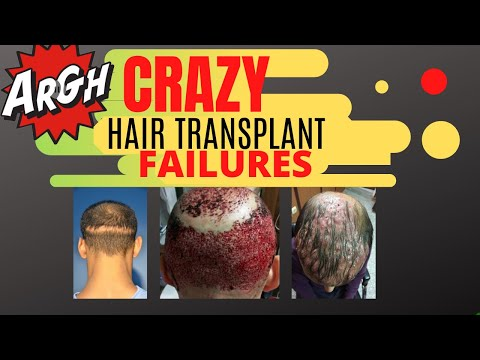 Bad Hair Transplant Results Repair Of The Worst Case