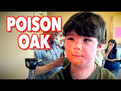 Harsh POISON OAK Reaction | Dr. Paul