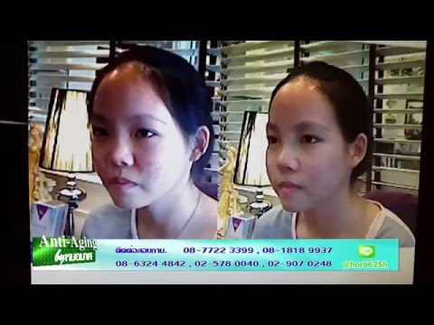 Anti Aging by หมอมาศ@Beauty TV 2015 12 09 AGNESกระตุ้นร่องใต้ตา, AGNES รักษาสิวอักเสบ,ใส่แกนจมูก 3/4