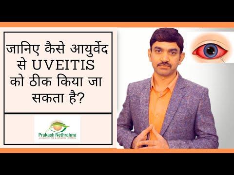 Uveitis: Causes, Symptoms & Natural Ayurveda Treatment that