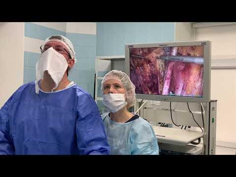 Рак шейки матки. Лапароскопическая операция. Профессор Пучков К.В.