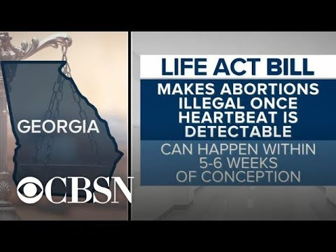 """Heartbeat bill"" in Georgia would ban abortions after heartbeat detected"