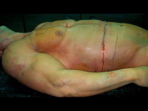 5 Brutales Transformaciones Por Abuso De Esteroides   Doovi