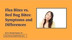 Flea Bites vs. Bed Bug Bites: Symptoms and Differences | Doctors Health Press